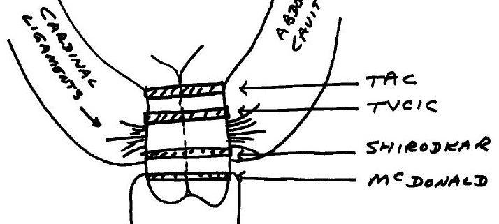 Trans-Abdominal Cerclage